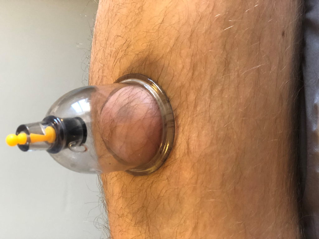 dry cupping therapy in Leicester