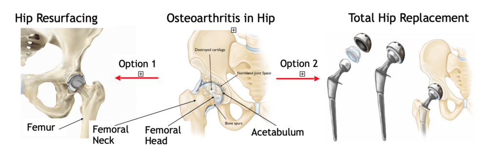 image showing hip replacement